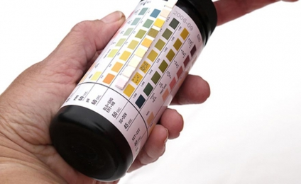 Urine dipsticks analysis Instruction sheet